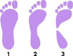 foot types